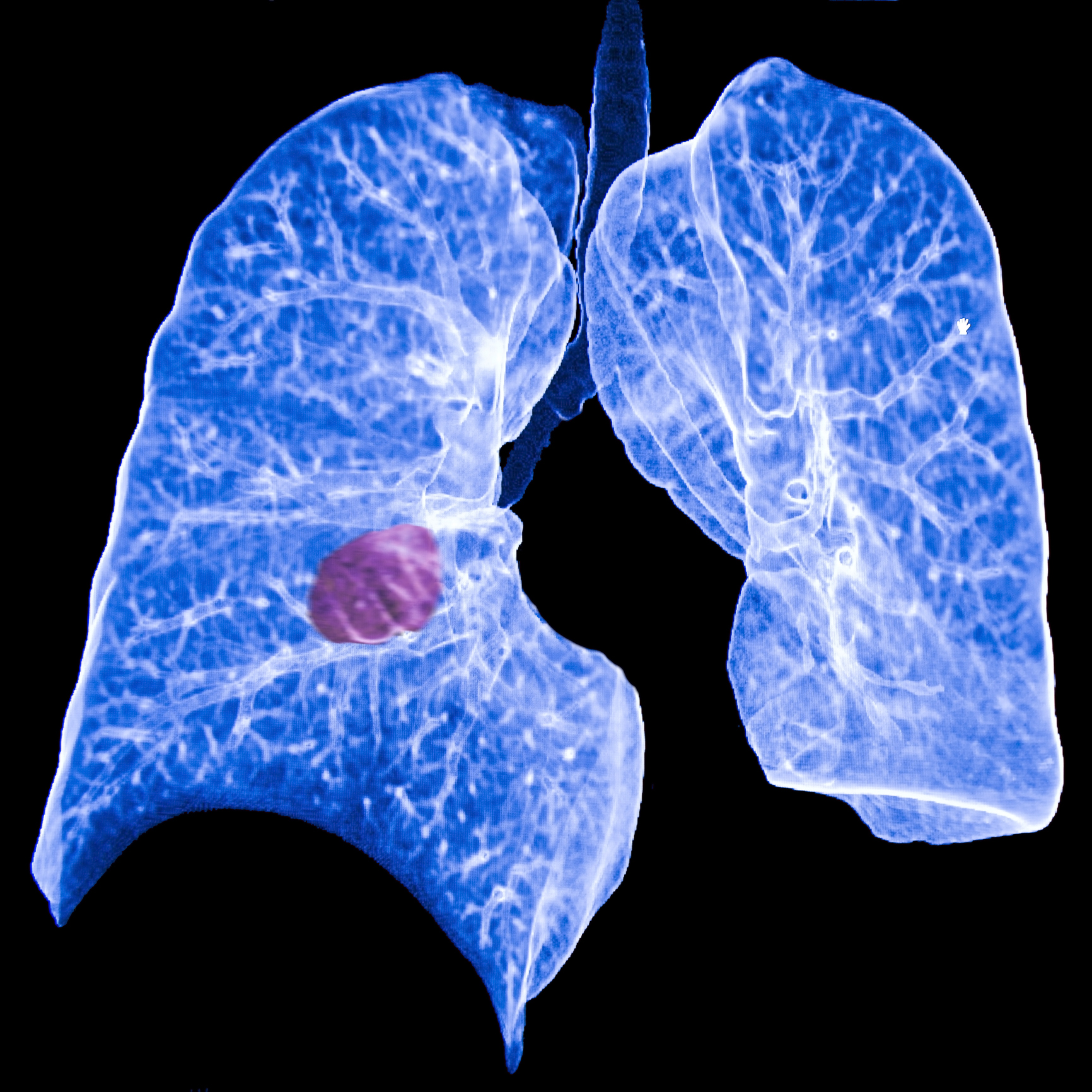 ct scan of blue lungs with red growth RDS Environmental Colorado